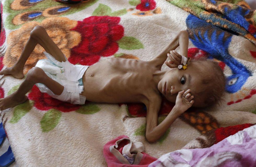 85 000 enfants de moins de 5 ans seraient morts de faim depuis le début de la guerre au Yémen