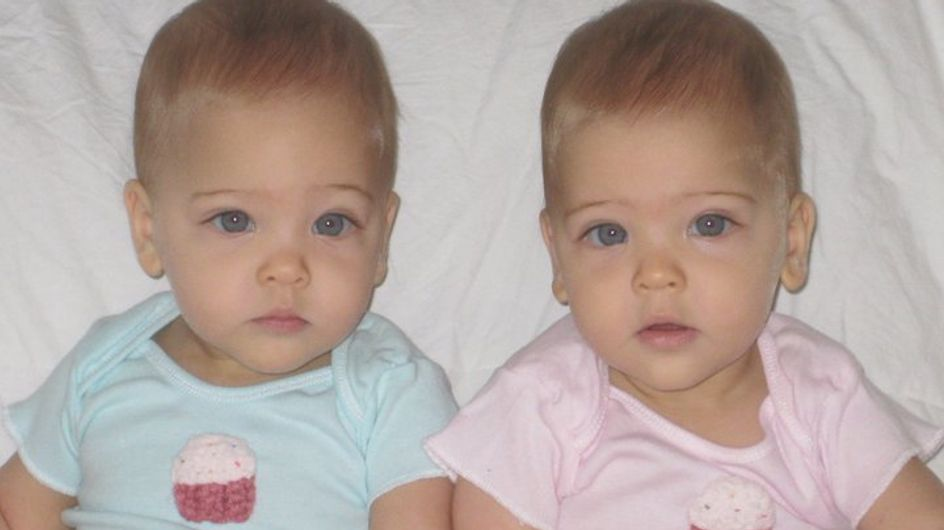 """Bébés, elles étaient """"les jumelles les plus belles du monde"""", regardez à quoi elles ressemblent aujourd'hui"""