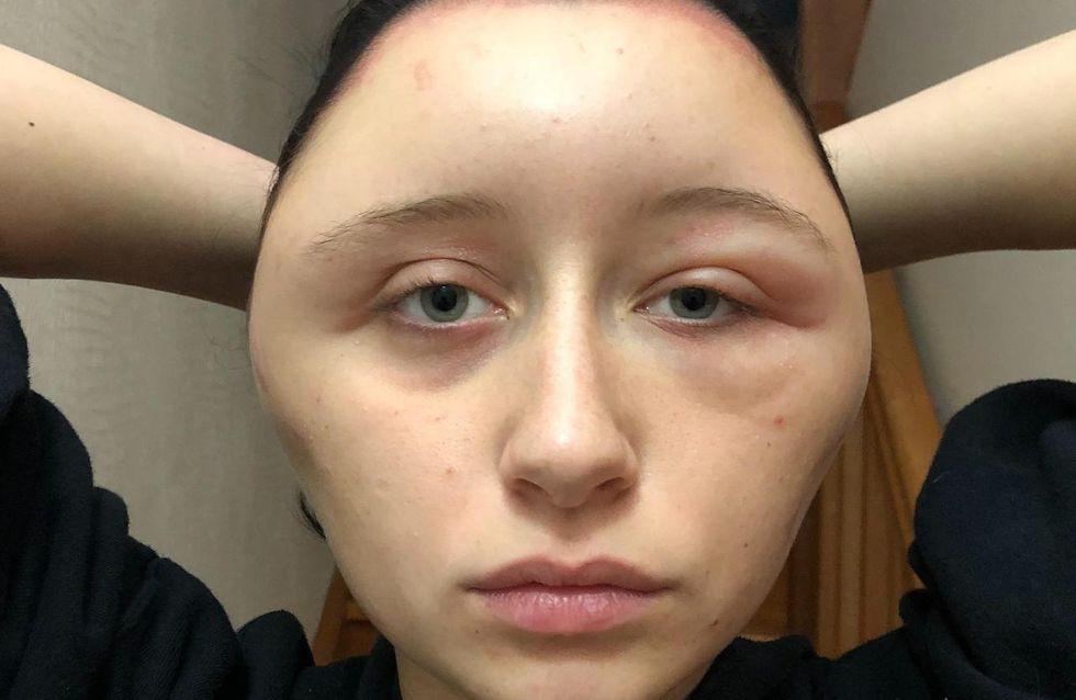 Défigurée, son visage double de volume après une coloration (Photos)