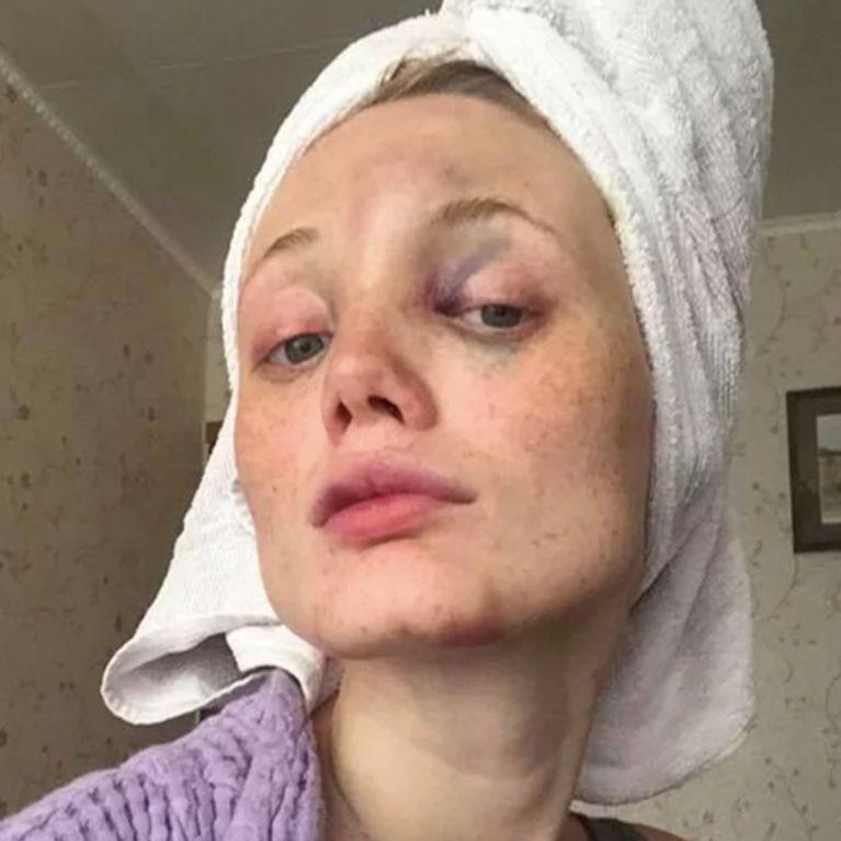 Le Temoignage Bouleversant D Une Victime De Violences Conjugales