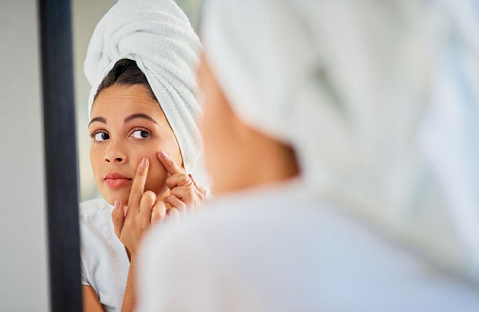 Descubre los mejores productos anti acné y di adiós a los granos