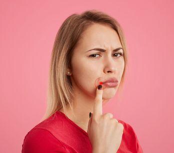 Was hilft gegen Herpes? Die besten Tipps und Hausmittel