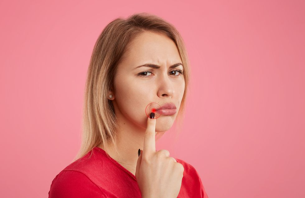 was hilft bei lippenherpes hausmittel