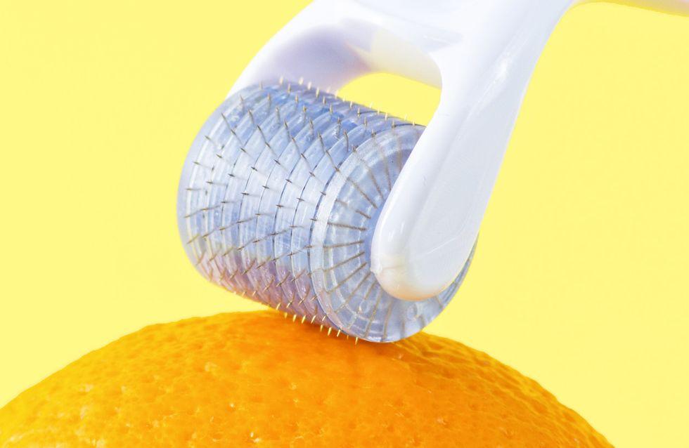 Dermaroller-Test 2020: Machen sie die Haut wirklich schöner?