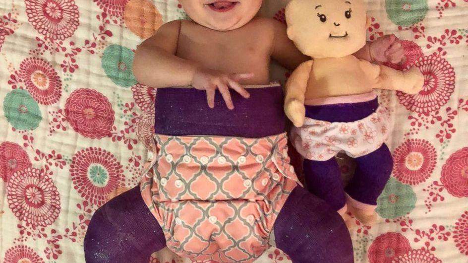 Adorable ! Un petit garçon offre une poupée à sa soeur avec le même handicap qu'elle