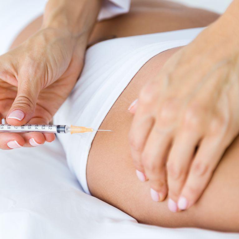 tratamientos para la celulitis 2020