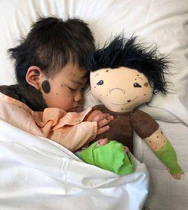 Cette maman crée des poupées personnalisées pour les enfants porteurs d'un handi