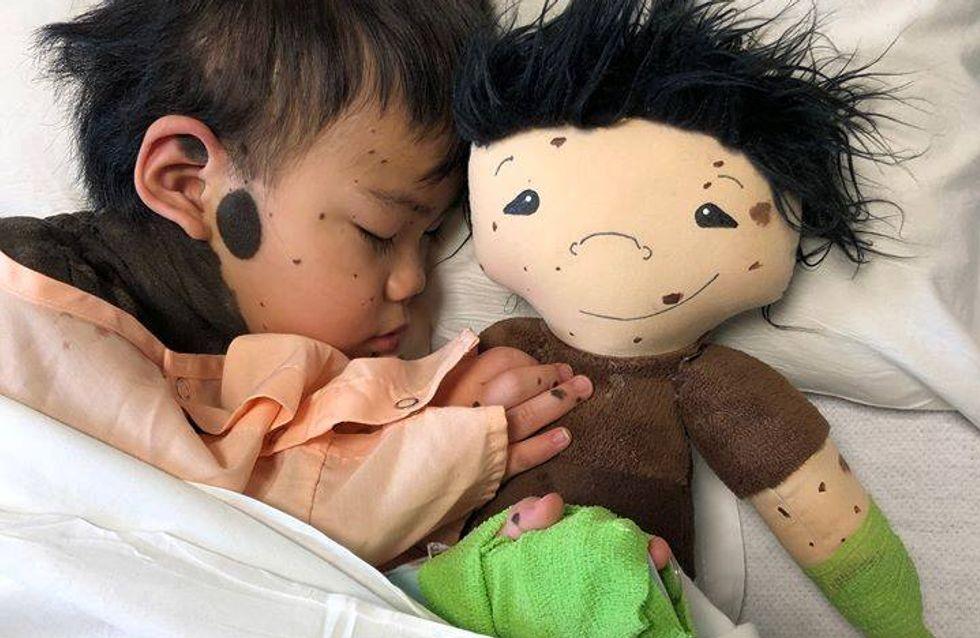 Cette maman crée des poupées personnalisées pour les enfants porteurs d'un handicap