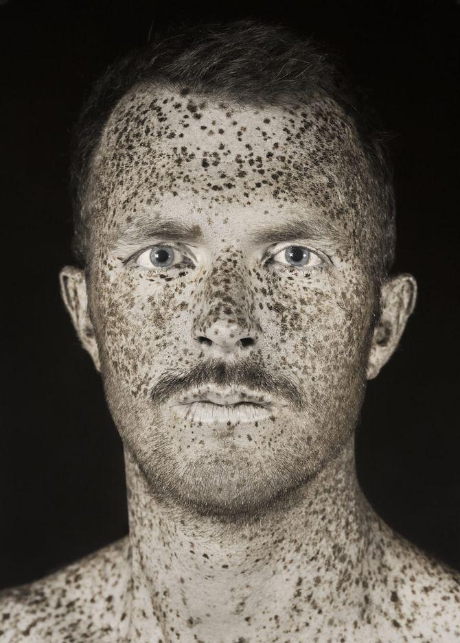 Un photographe montre l'impact inquiétant du soleil sur notre peau ! (Photos)
