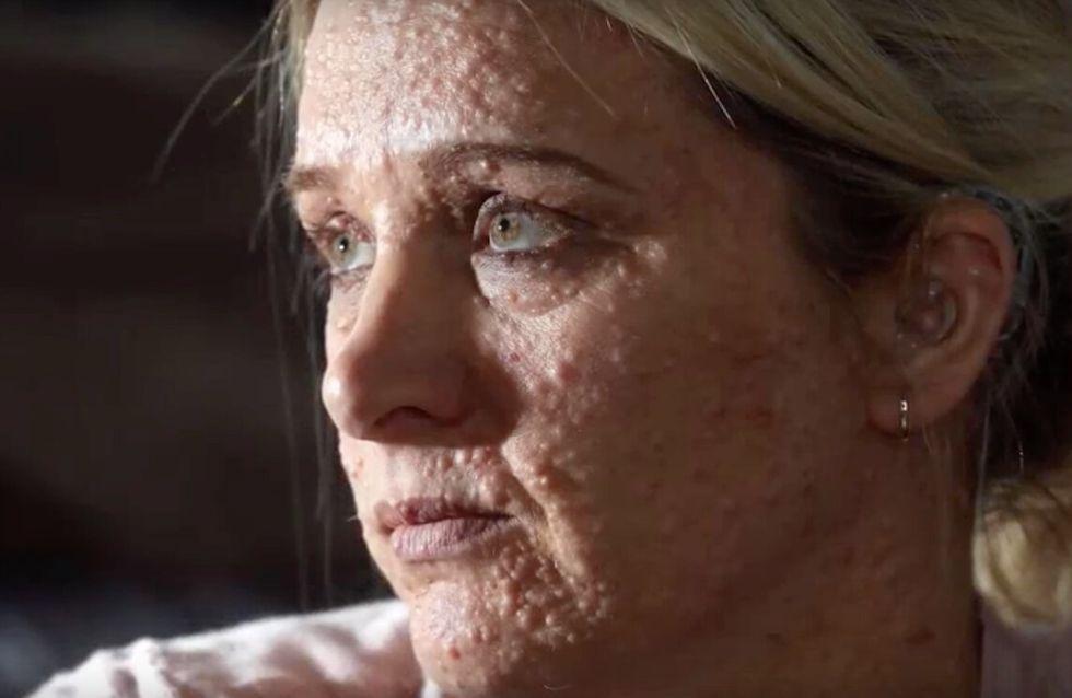 Rejetée à cause de sa maladie de peau, elle assume son corps à la télévision