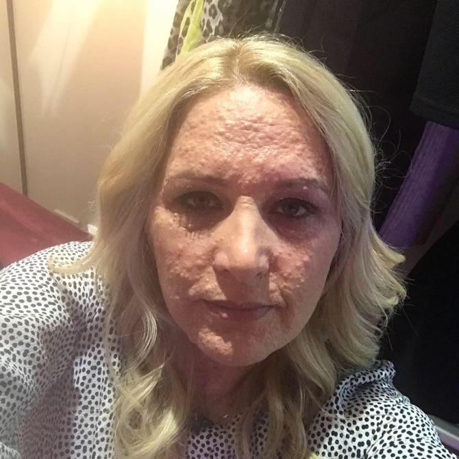 Rejetée à cause de sa maladie de peau, elle dévoile son corps à la télévision