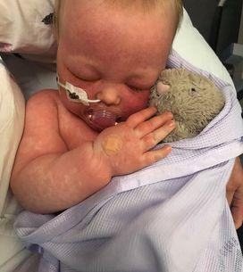 Elle publie les photos choquantes de son bébé pour alerter sur la non-vaccinatio