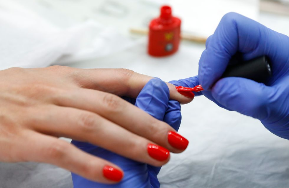 Après s'être brûlée avec de la colle pour les ongles, elle pourrait avoir besoin d'une greffe de peau