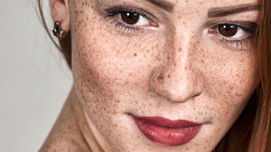 Pigmentflecken im Gesicht: Woher sie kommen und wie du sie loswirst