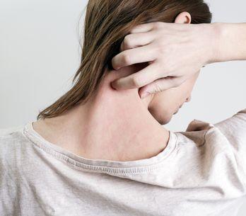 ¿Tienes la piel atópica? Estos son los productos imprescindibles para tratarla