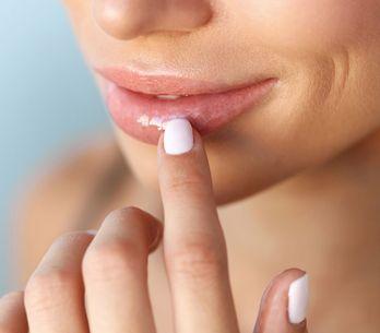 Lippenbläschen: So wirst du sie schnell wieder los!