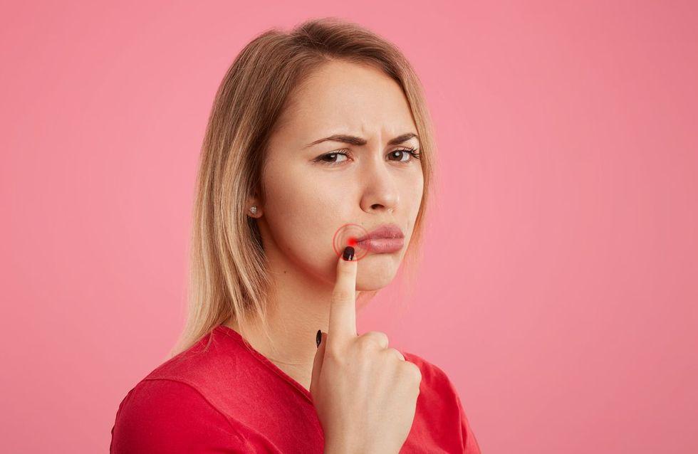 Herpès labial : les meilleures astuces contre les boutons de fièvre