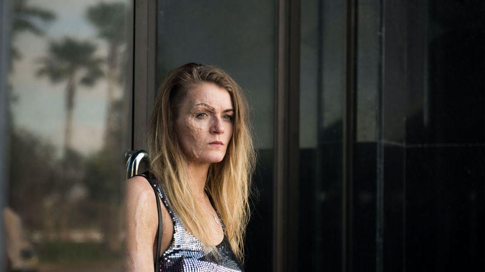 Dirty God: la reconstruction poignante d'une femme brûlée au visage