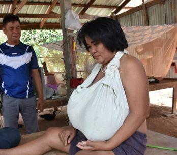 Atteinte d'une maladie rare, cette femme voit sa poitrine augmenter de volume de
