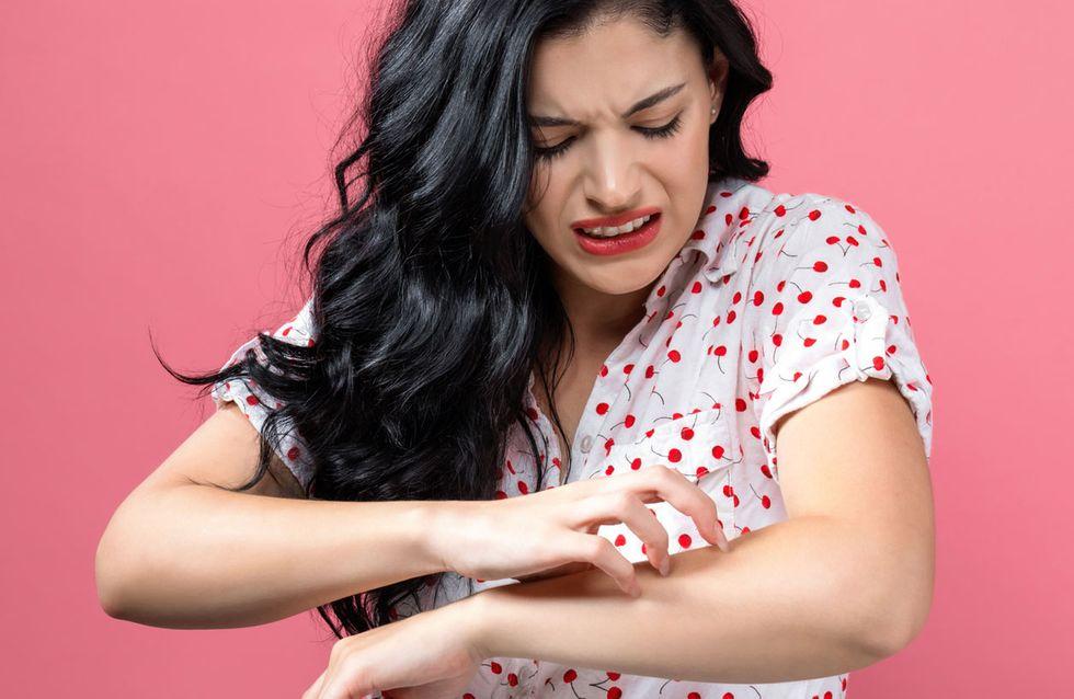 Was hilft gegen Mückenstiche? Die besten Tipps und Hausmittel