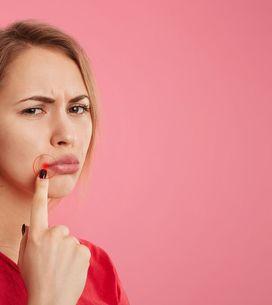 Herpes labiale: ecco cosa aiuta davvero a curarlo