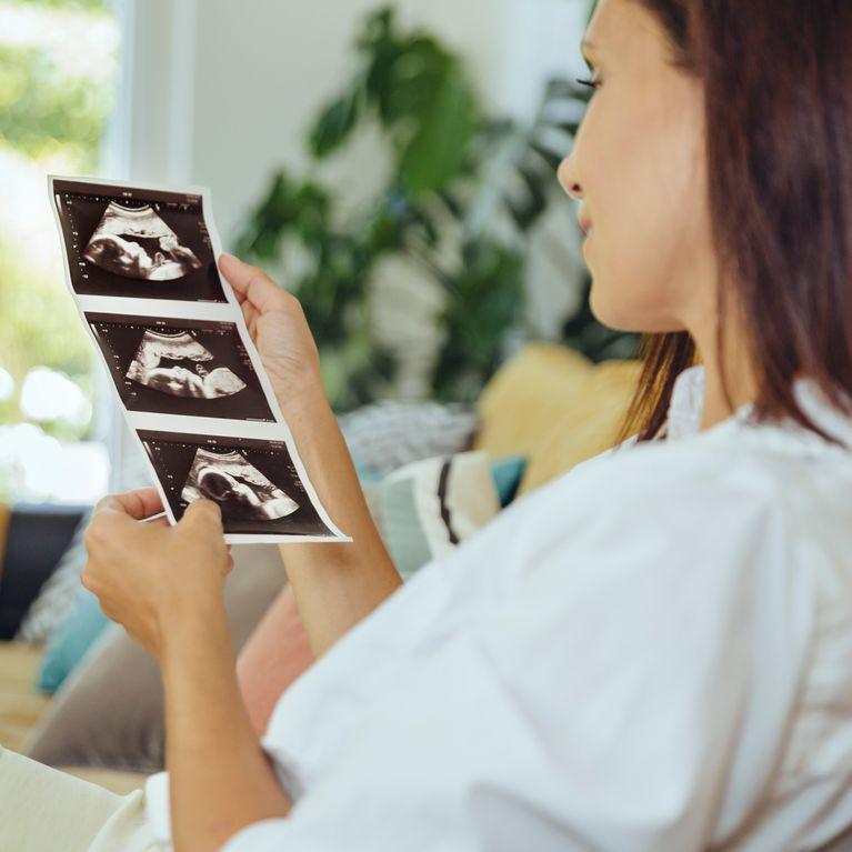 La sintomas foro embarazo antes de regla