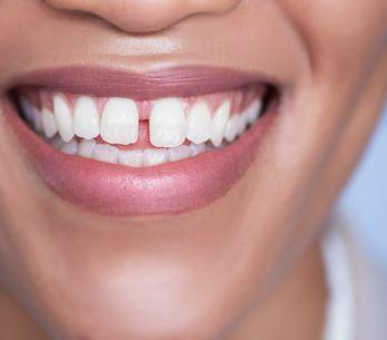 Contorno de labios: ¿por qué hay que cuidarlo de forma específica?