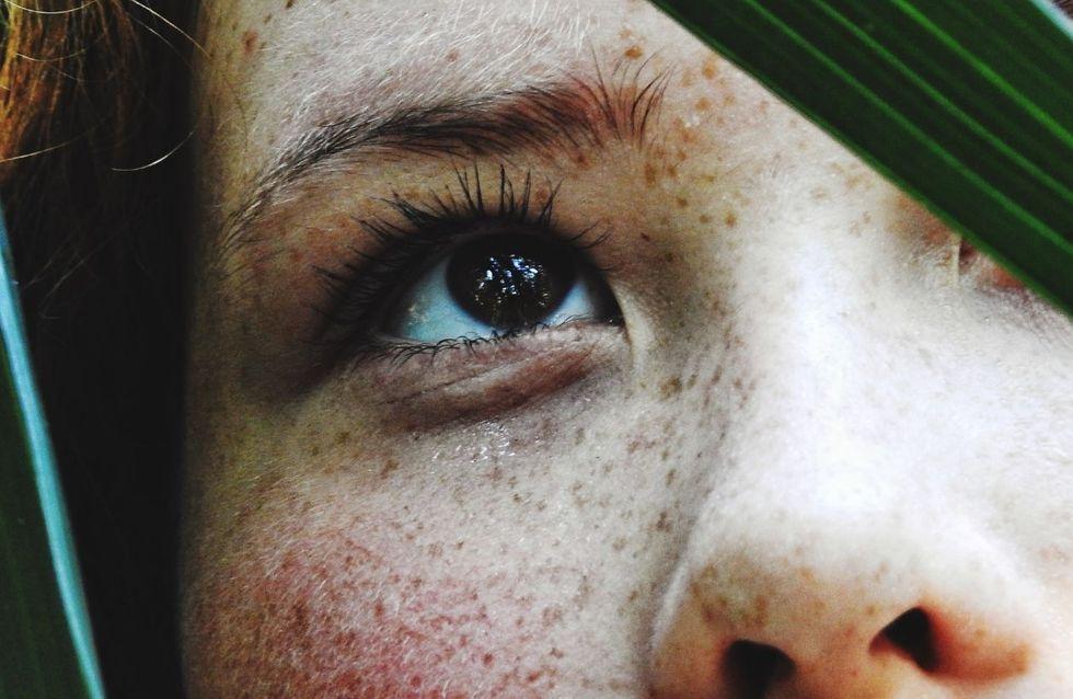 Salute della pelle: gli agenti esterni ed interni che possono danneggiarla