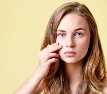 4 trucos de maquillaje para cubrir impurezas y granitos del rostro