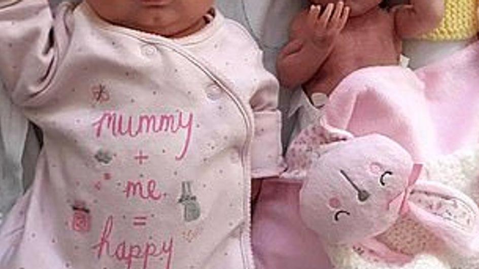 Des sœurs jumelles survivent après être nées avec 15 os fracturés et aucune chance de survie