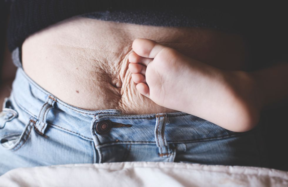 Cirugía para la diástasis abdominal ¿sí o no? Una usuaria responde