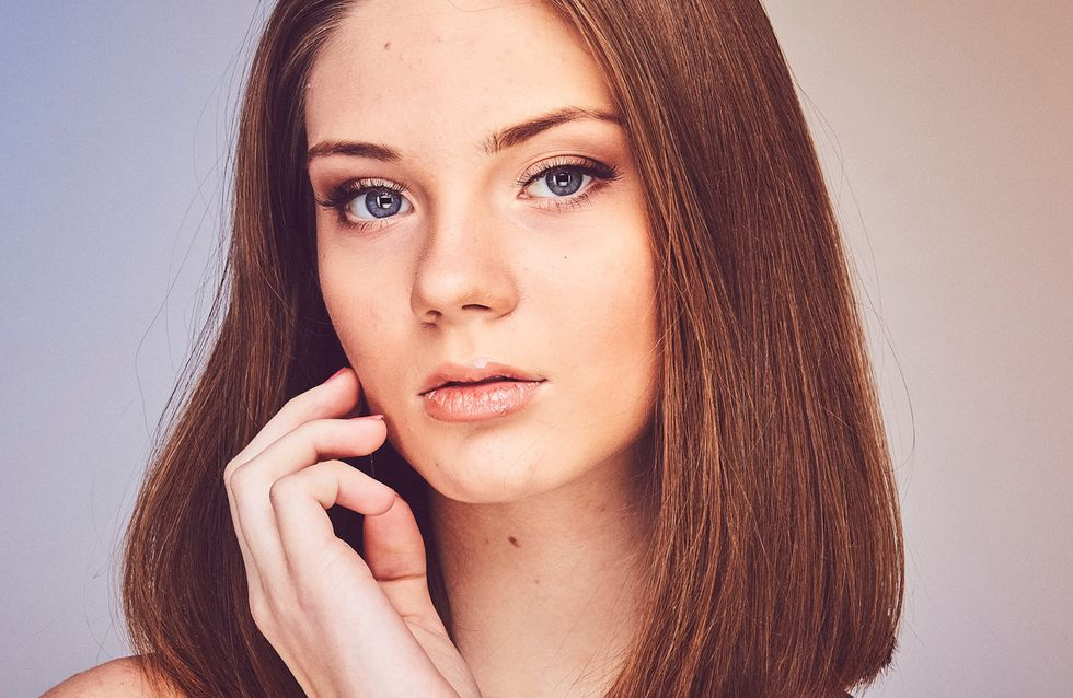 ¿La depilación láser es adecuada para eliminar el vello facial?