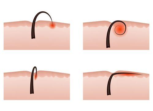 Entfernen talgknoten Hautgewächse/Hautknoten: Wann