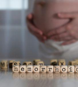 Hemorroides en el embarazo: causas comunes y cómo prevenirlas