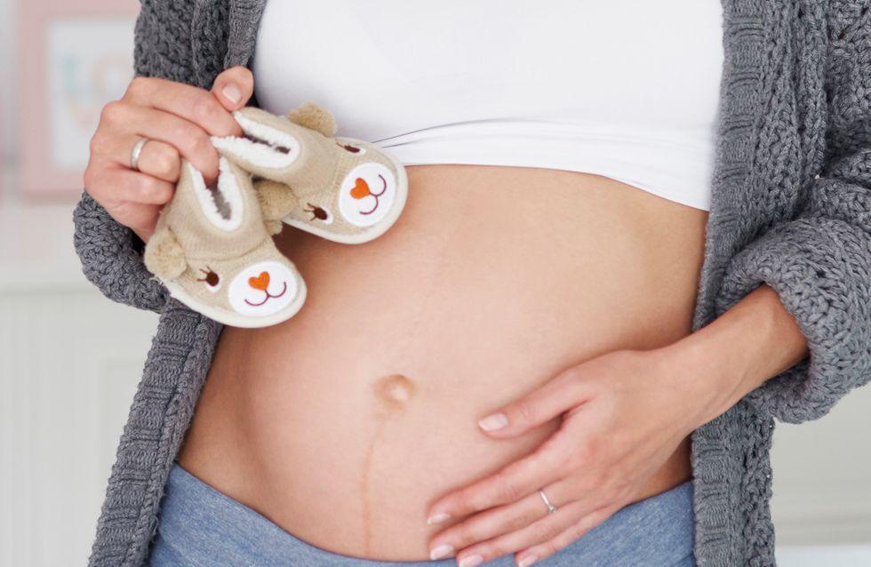 Linea nigra: perché compare durante la gravidanza e come si origina dalla linea alba