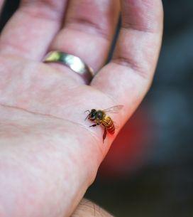 Punture di insetti: caratteristiche, sintomi principali e rimedi