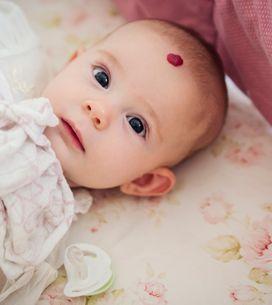 Angioma del neonato: tutto quello che c'è da sapere
