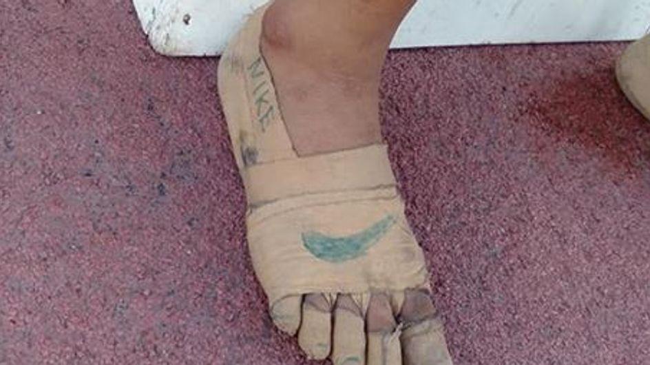 A 11 ans, elle fabrique des baskets improvisées en bandages et remporte trois courses