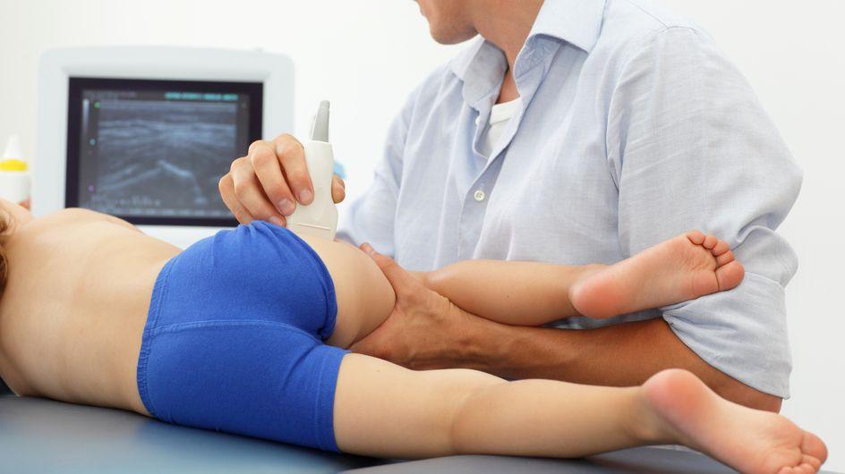 Rhume de hanche chez l'enfant : une boiterie impressionnante mais bénigne