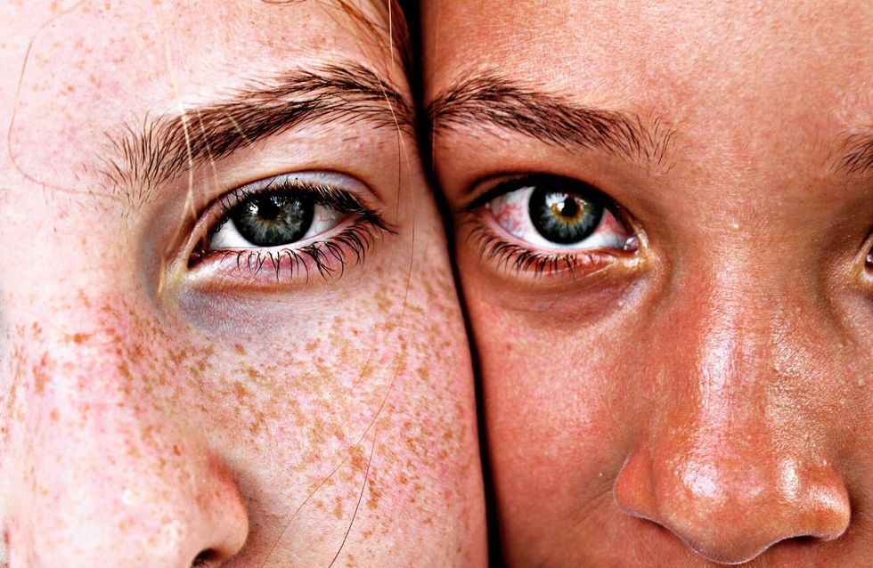 Crema para manchas en la cara: ¿qué formulas tienen eficacia probada?