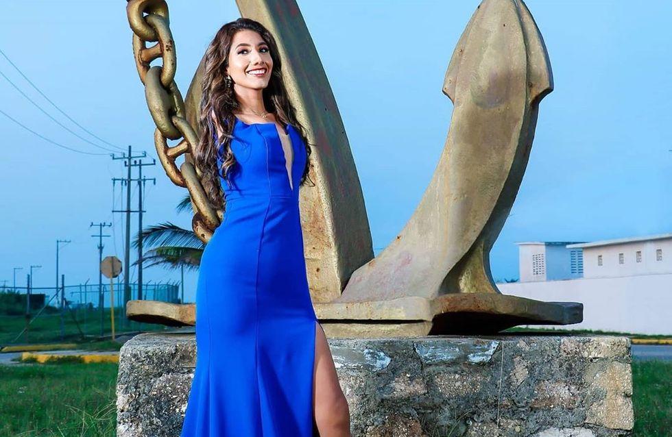 Cette miss mexicaine née sans bras défie les codes traditionnels de la beauté