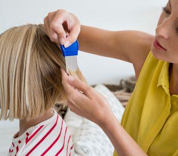 Come eliminare i pidocchi dal cuoio capelluto: tutti i rimedi più efficaci