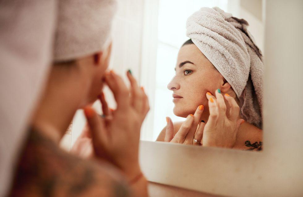 Macchie bianche sulla pelle: tutte le cause e i rimedi