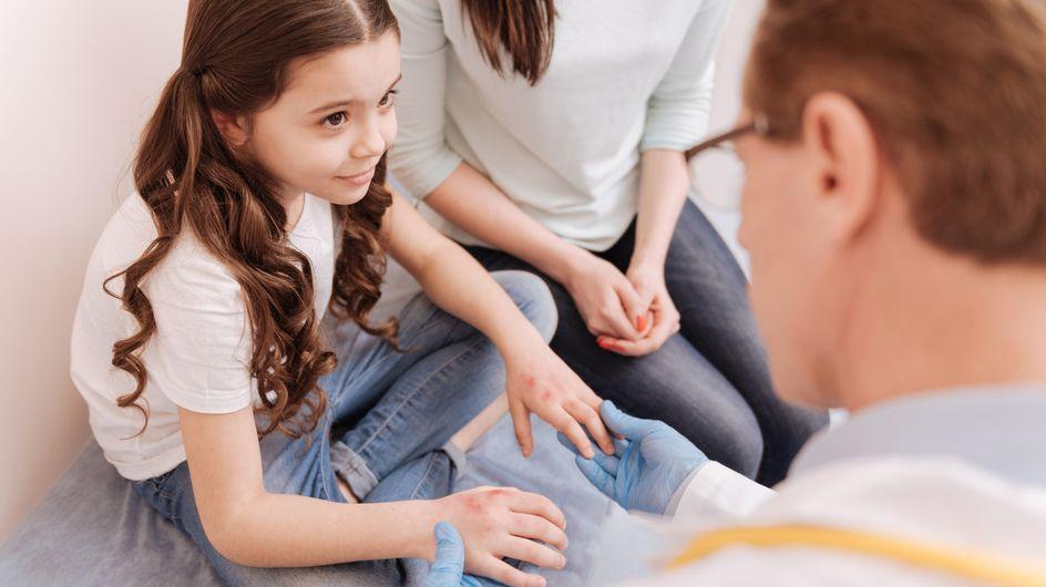 Orticaria nei bambini: quali sono le cause e i rimedi più efficaci?