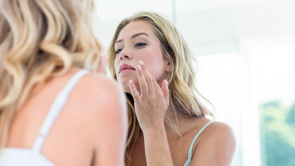 Pickelmale entfernen: Das hilft gegen die lästigen Flecken auf der Haut