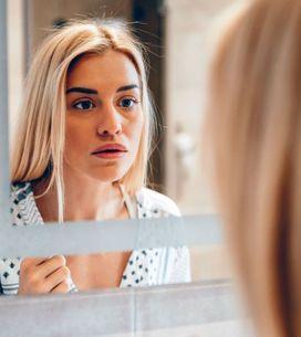 ¿Rojeces en la cara? Estas son las causas más comunes y los remedios más eficace