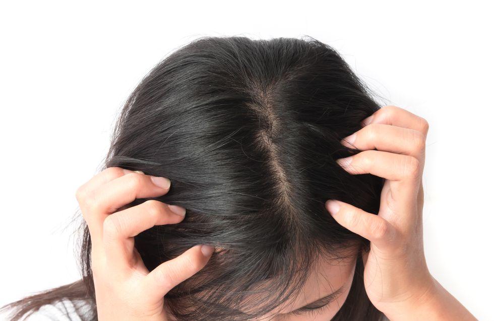 Mon cuir chevelu est irrité : comment y remédier ?