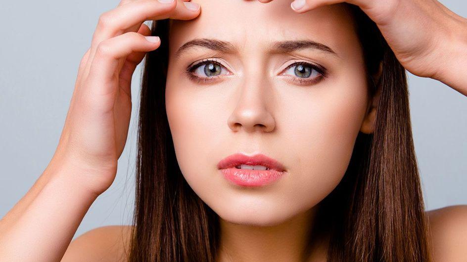 Brufoli sulla fronte: cause e rimedi per sbarazzarsene