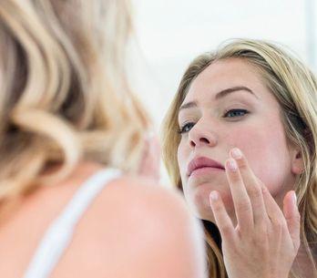 Macchie rosse sul viso: 4 cause e relativi rimedi