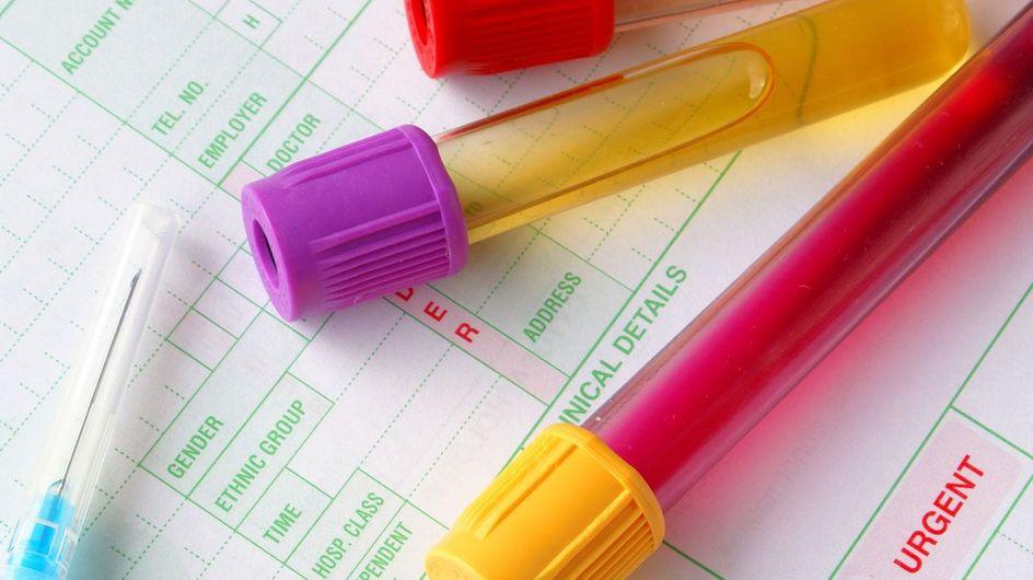 Aprende a interpretar un análisis de sangre